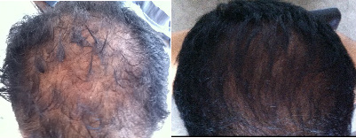 Dry Scalp & Hair Loss Before & After